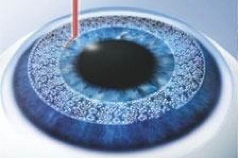 femto LASIK icon