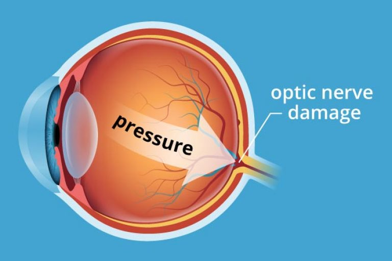 glaucoma-pressure-330x220@2x