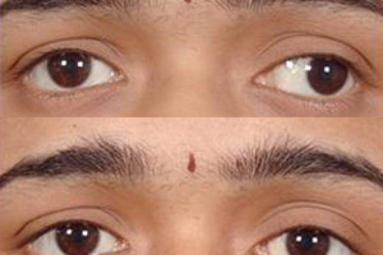 squint_eye_2